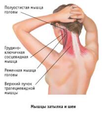 болит нерв в плече