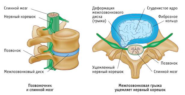 Лечение протрузии позвоночного диска поясничного отдела